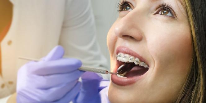 a woman is wearing braces